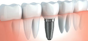 Whittier Cosmetic Dentist | dental implants | Thomas Trinh DDS Inc