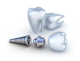 Whittier Cosmeti Dentist | single tooth dental implants, missing teet replacments | Thomas Trinh DDS Inc