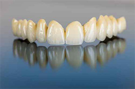 Whittier Dentist | dental bridges| Thomas Trinh DDS Inc