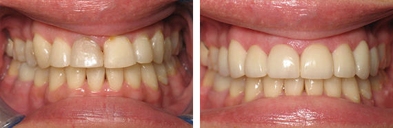 Whittier Dentist | Thomas Trinh DDS | Smile Gallery